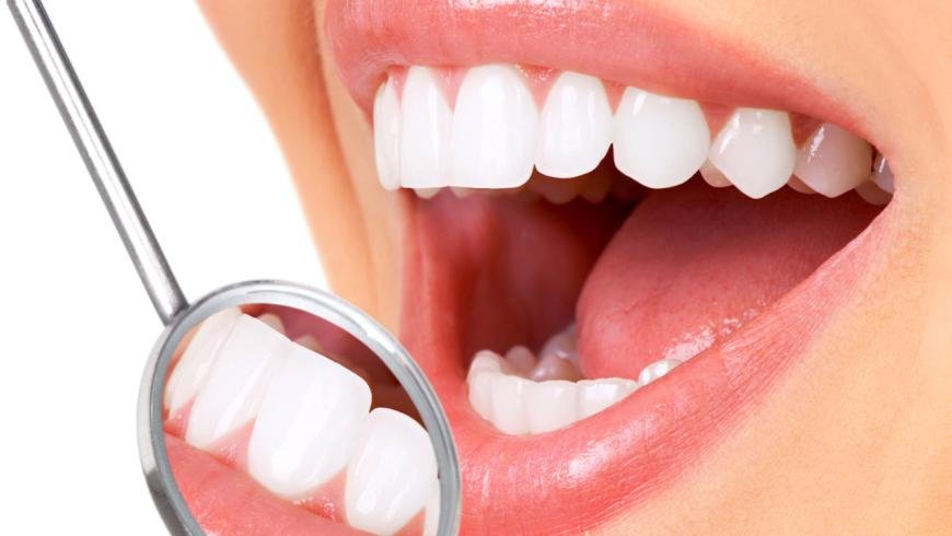 Mitos E Verdades Sobre Clareamento Dental Sorriso E Saude